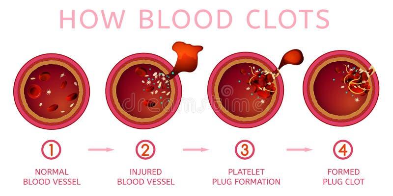 Process för klumpa ihop för blod stock illustrationer