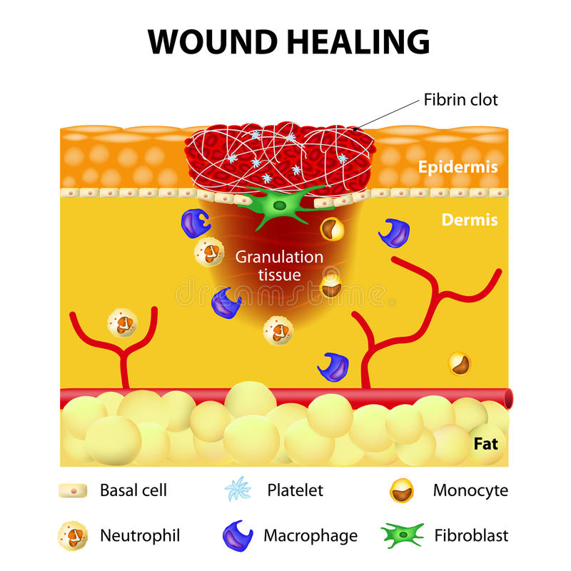 Process of wound healing. The wound healing process. Cutaneous wound after injury vector illustration