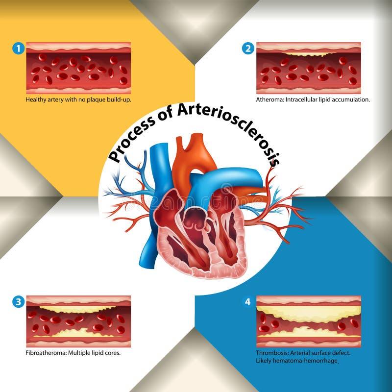 Processus d'affiche d'artériosclérose illustration de vecteur