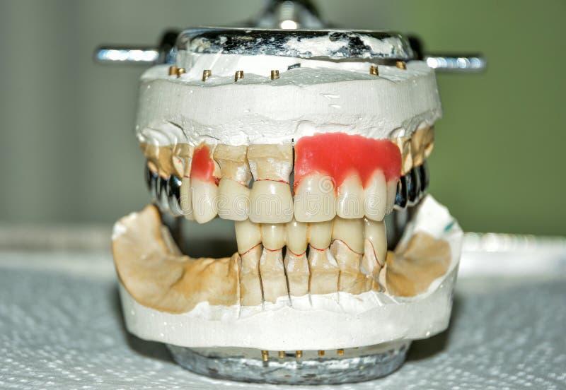 Productie van tandprothesen, metaal-ceramische kronen op de modellen van gipstanden in de behandeling van patiënten door tandarts stock foto's