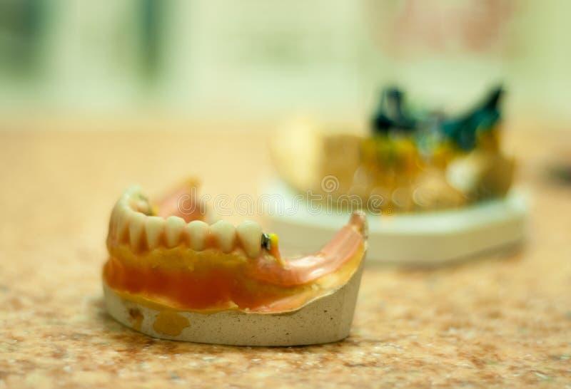 produktion av tand- implantat royaltyfri foto