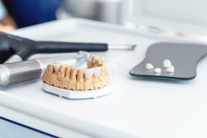 Produktion von zahnmedizinischen Furniern-Blätter und von Kronen vom medizinischen Porzellan und von der Keramik lizenzfreie stockfotografie