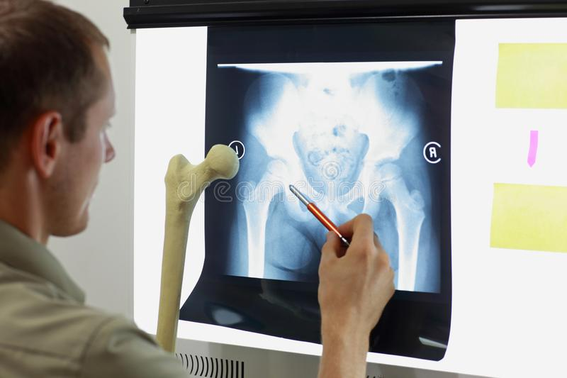 Professional with femur bone model watching image ofof hip- joint royalty free stock image
