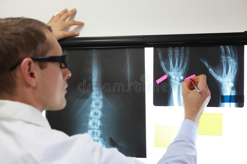 Professional making notes,working with x-ray image royalty free stock photos