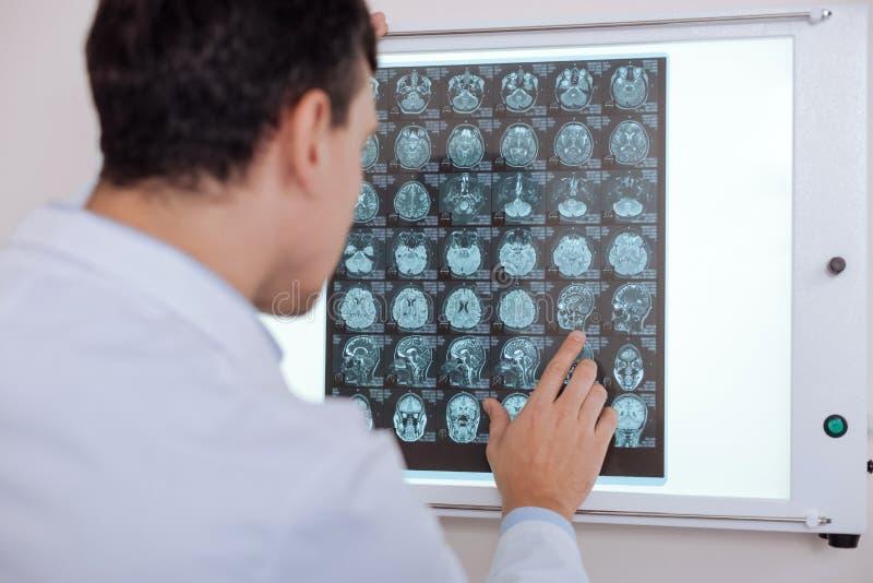 Professionele mannelijke arts die het Röntgenstraalbeeld bekijkt stock fotografie