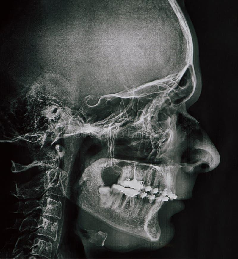 Profielröntgenstraal van mensenkaak royalty-vrije stock foto