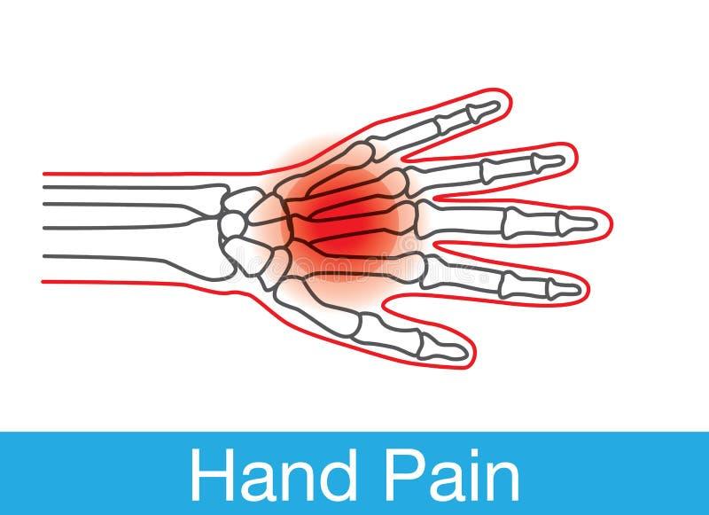 Profilo di dolore della mano royalty illustrazione gratis
