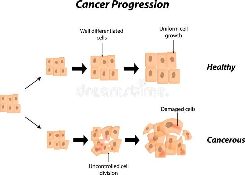 Progressão do câncer ilustração royalty free