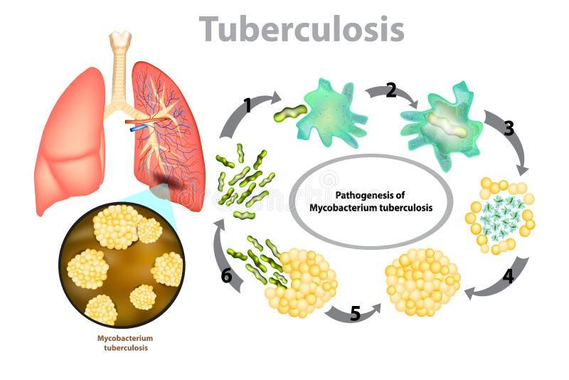 Progressione della tubercolosi polmonare illustrazione vettoriale