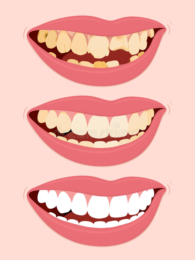 Download Progressive Stages Of Tooth Decay Caries Stock Vector - Image: 22280436