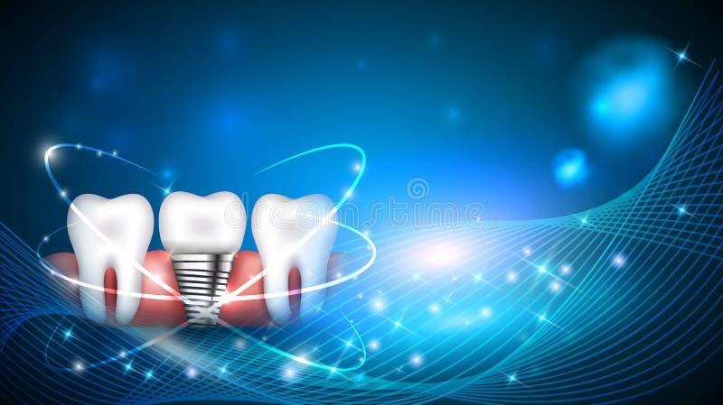 Projeto moderno científico de implante dental ilustração royalty free