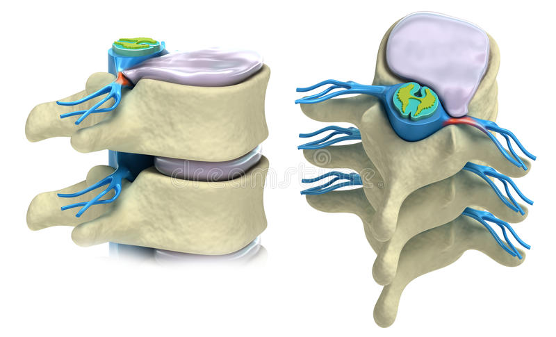 Prolapse of intervertebral disc vector illustration