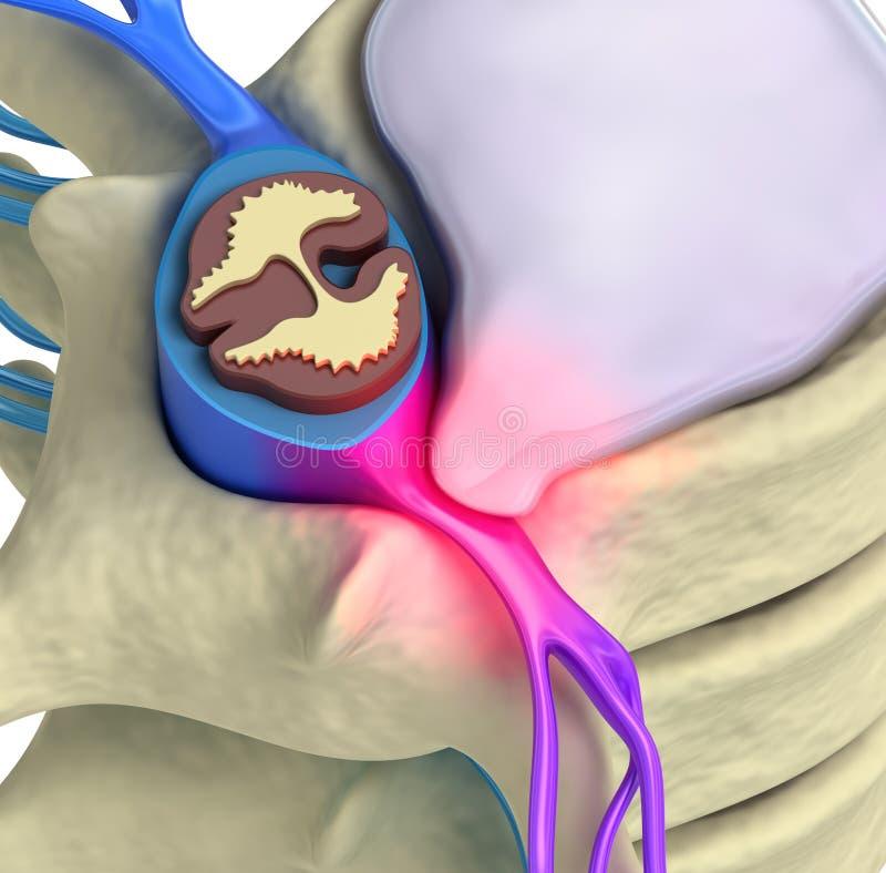 Prolapse of intervertebral disc. Closeup royalty free illustration