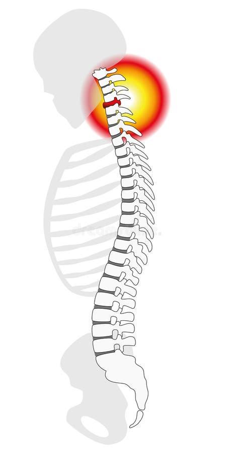 Prolapso espinal do disco das vértebras cervicais de dor de pescoço ilustração stock