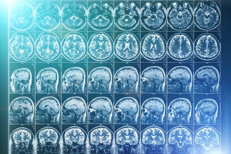 promieniowania rentgenowskiego lub MRI obrazu cyfrowego wizerunek, neurologii pojęcie obrazy royalty free