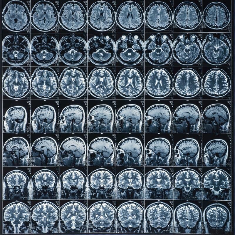 promieniowania rentgenowskiego lub MRI obrazu cyfrowego wizerunek, neurologii pojęcie fotografia stock