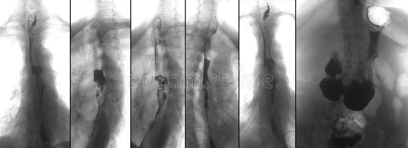 Promieniowanie rentgenowskie górne gastrointestinal serie UGI z barium Nowotwór esophagus negatyw fotografia stock