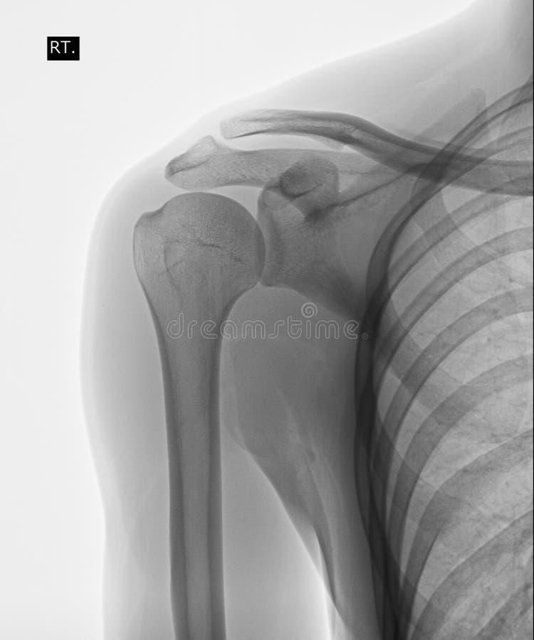 Promieniowanie rentgenowskie istoty ludzkiej ramię fotografia royalty free