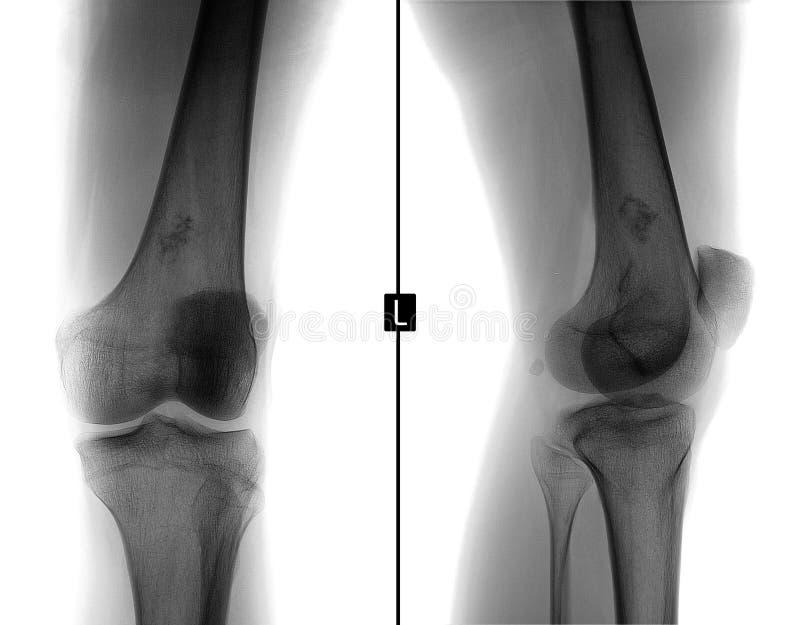 Promieniowanie rentgenowskie lewy kolanowy złącze Ewing mięsak, lymphoma, myeloma uda kość negatyw fotografia stock