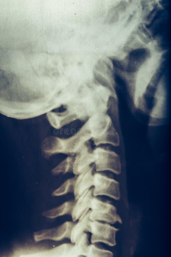 Promieniowanie rentgenowskie ludzka szyja, kręgosłup lub kręgosłup, zdjęcia royalty free