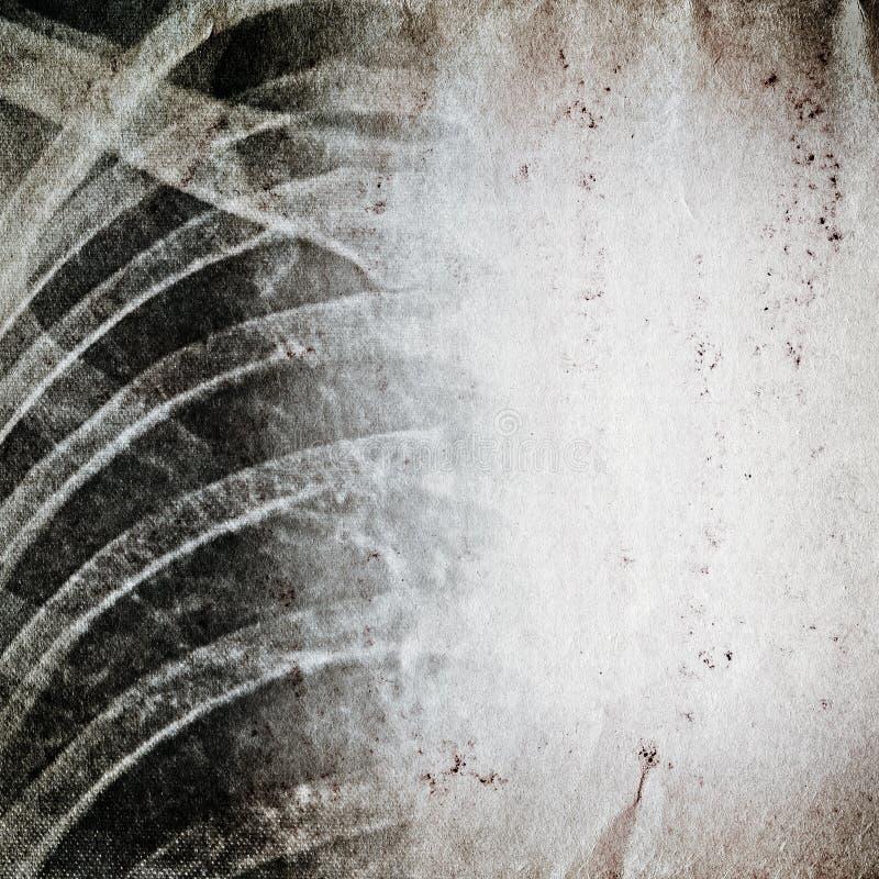 Promieniowanie rentgenowskie ludzkiej klatki piersiowej stary grunge fotografia royalty free