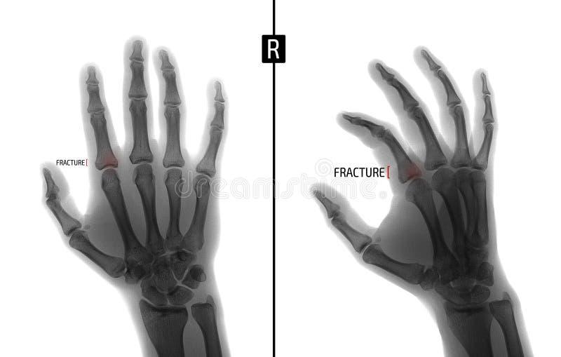 Promieniowanie rentgenowskie ręka Pokazuje przełam baza proximal paliczek drugi palec prawa ręka markiery negatyw zdjęcie royalty free