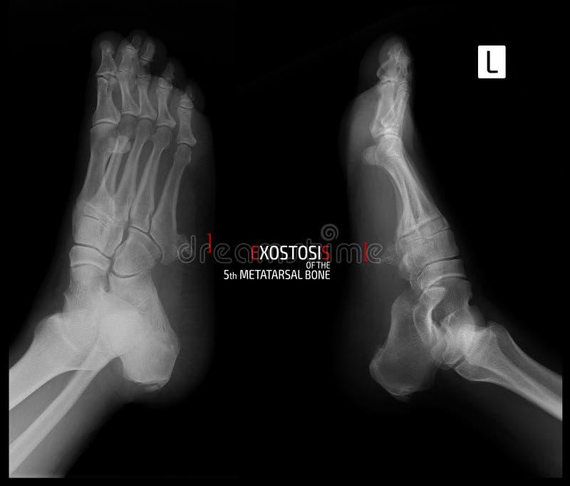 Promieniowanie rentgenowskie stopa Exostosis 5th metatarsal kość markiery zdjęcia royalty free