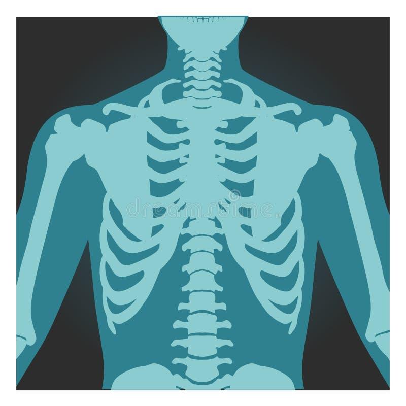 Promieniowanie rentgenowskie strzał ramię, ciało ludzkie kości, prześwietlenie, ziobro klatka, klatka piersiowa i ręka, wektorowa ilustracja wektor
