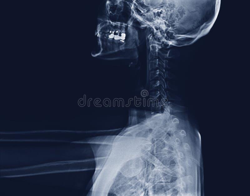 Promieniowanie rentgenowskie szyja i kręgosłup obraz royalty free