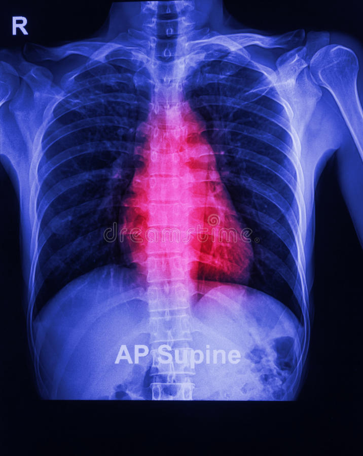 Promieniowanie rentgenowskie wizerunek ludzka klatka piersiowa obraz royalty free