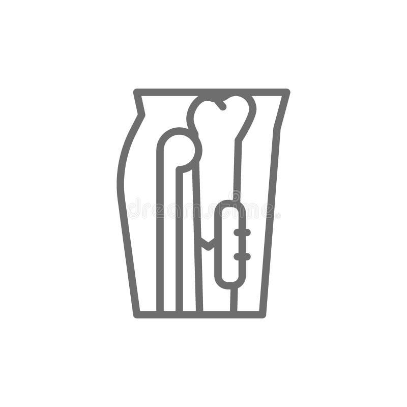 Promieniowanie rentgenowskie złamana noga, kość załatwiająca z medyczną implantable talerz linii ikoną ilustracja wektor
