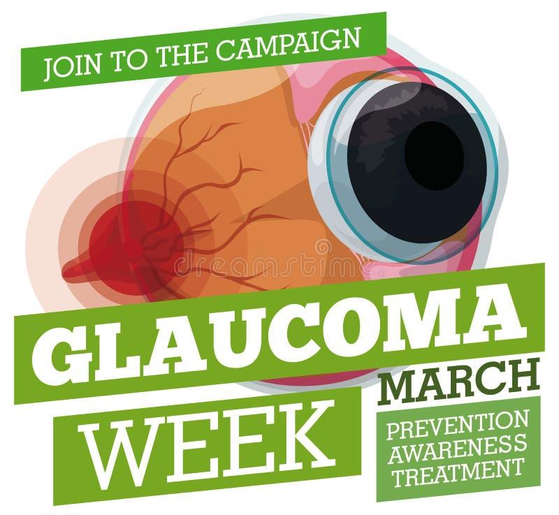 Propagande préventive avec le globe oculaire malade pour la semaine de glaucome, illustration de vecteur illustration libre de droits