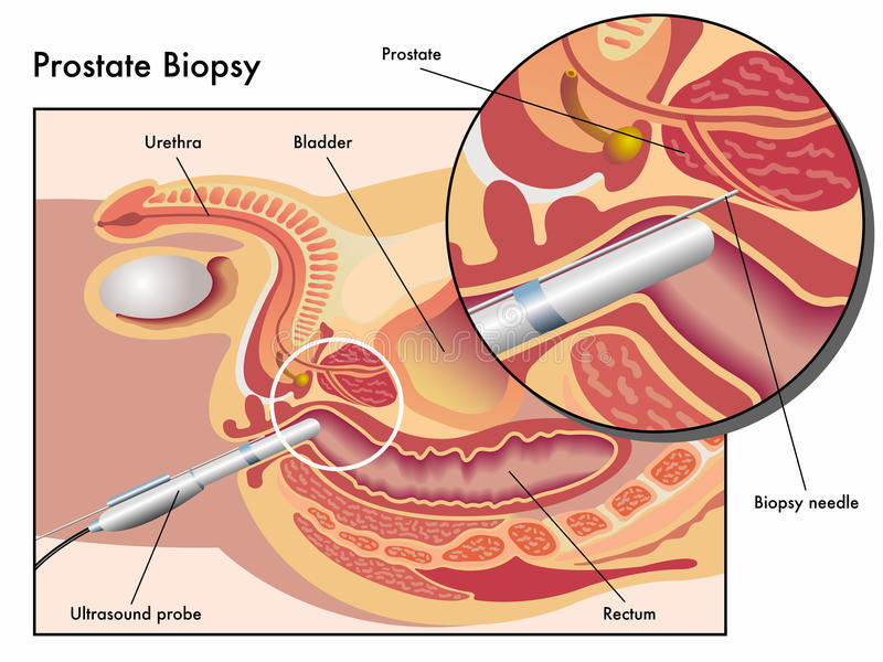Prostate biopsy. Medical illustration of the Prostate biopsy exam vector illustration
