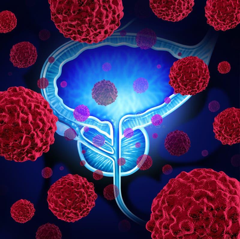 Prostate Cancer royalty free illustration