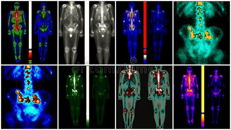 Prostate kankermetastase royalty-vrije stock afbeelding