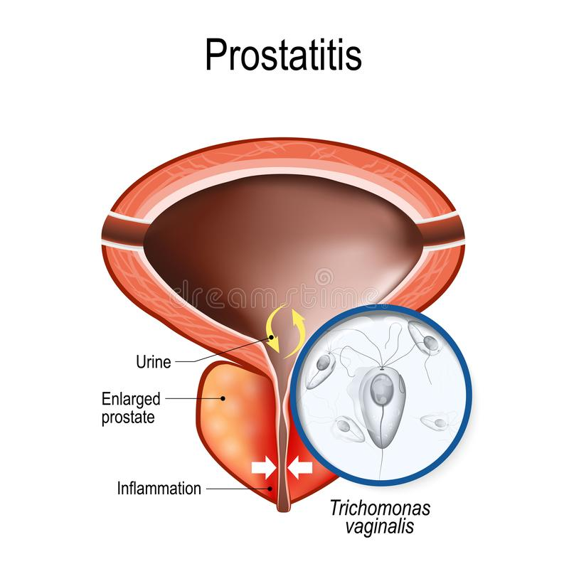 uretritis en hombres you tube video