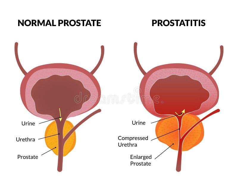 Prostatitispatologiaffisch stock illustrationer