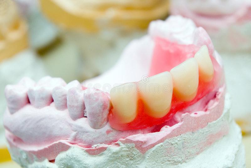 Prosthétique dentaire photographie stock