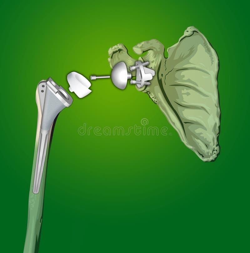 prosthesesskulder royaltyfri illustrationer