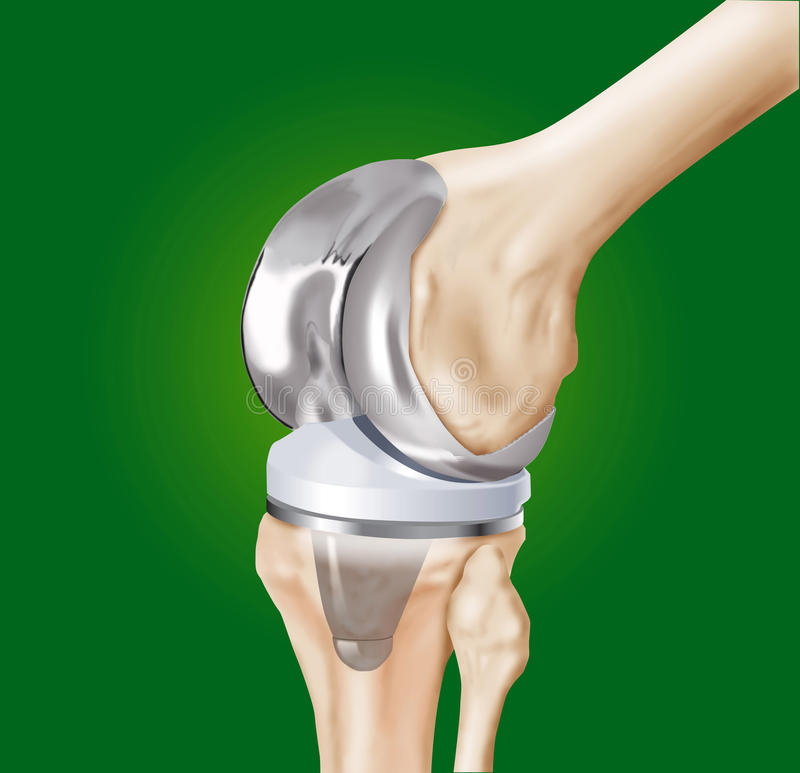 Prosthesis of the knee surgical stock illustration