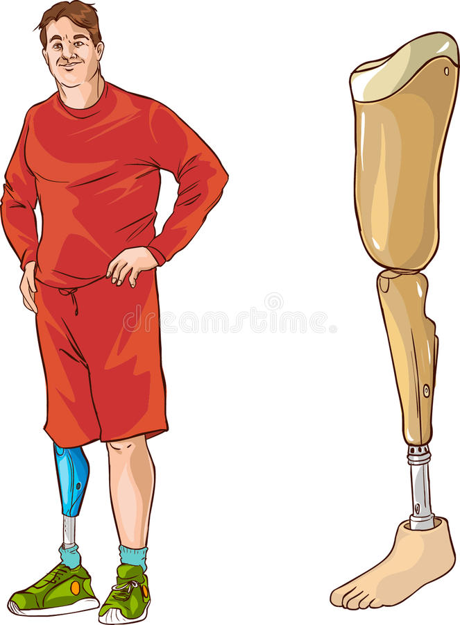 Prosthetic ben royaltyfri illustrationer