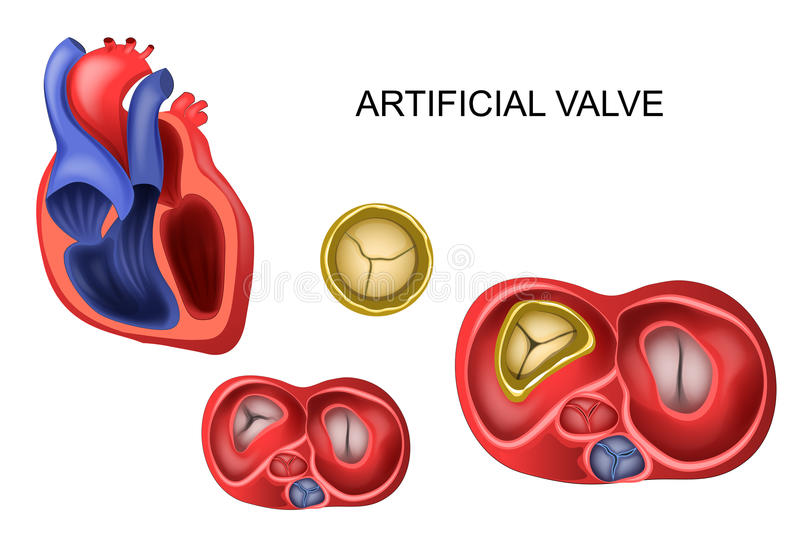 Prosthetic tricuspid heart valve vector illustration