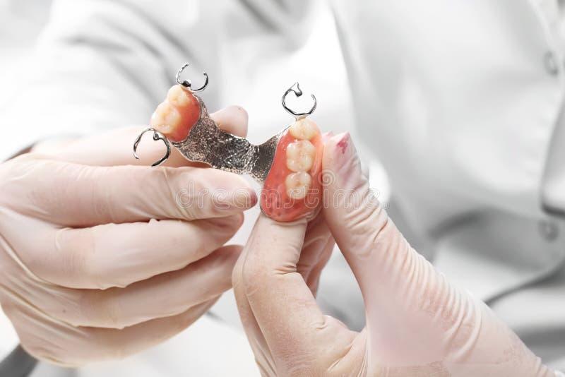 Prosthetics, orthodontie, tand royalty-vrije stock foto's