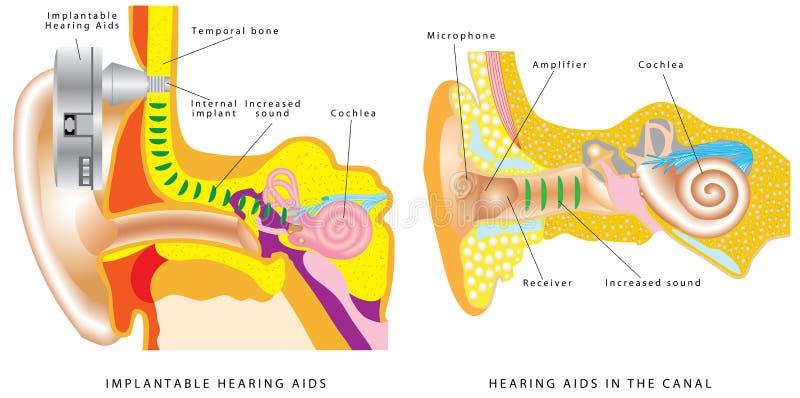 Protesi acustica dell'orecchio illustrazione vettoriale