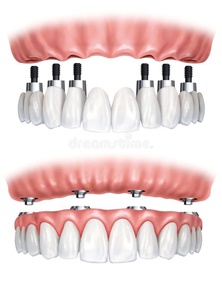 Protesi dentaria illustrazione di stock