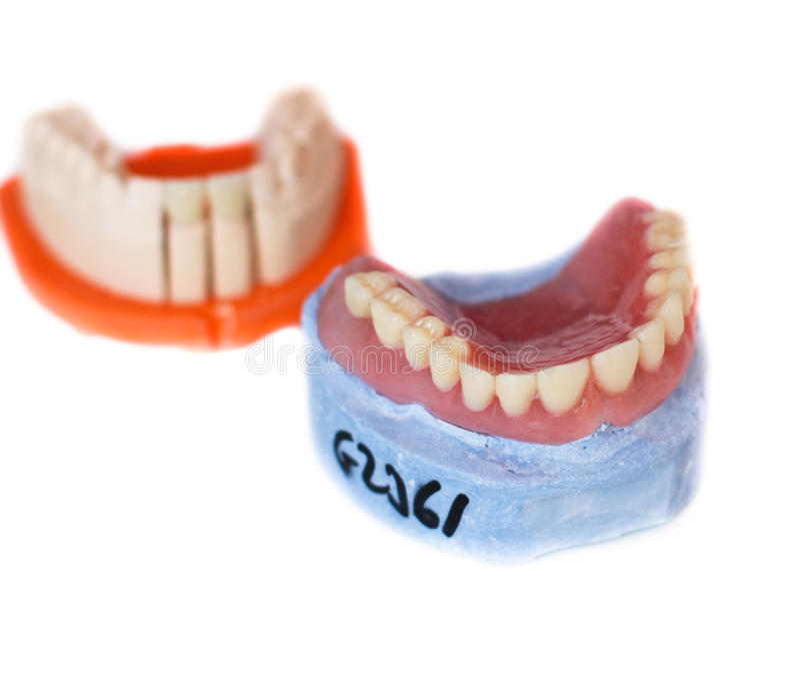 Protesi dentaria fotografia stock libera da diritti
