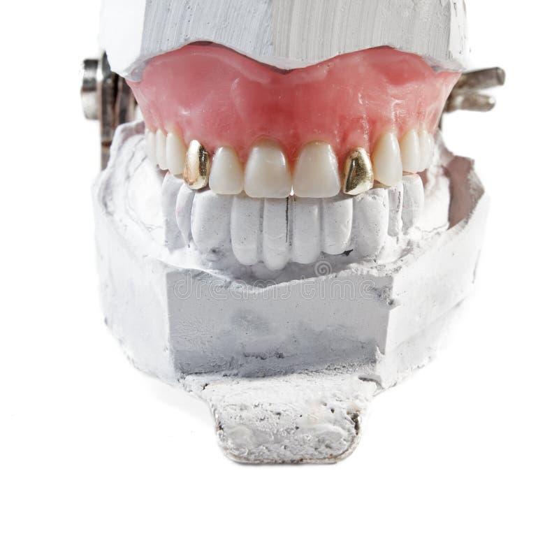 Protesi dentaria con due denti dell'oro fotografia stock