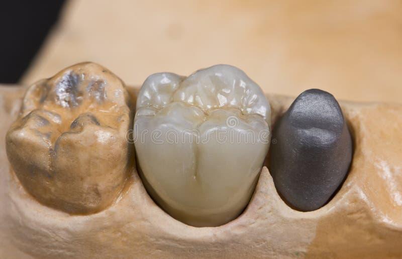 Protesi dentaria della cera immagini stock