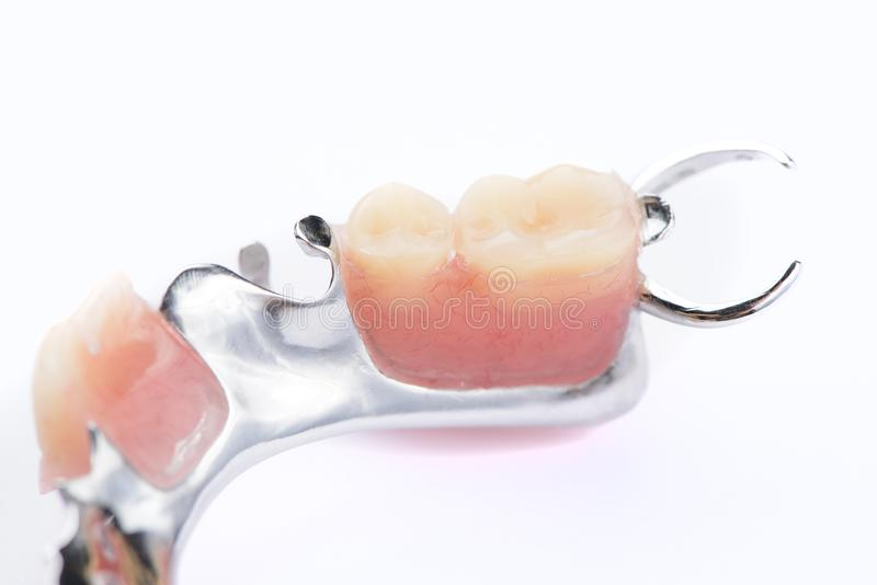 Protesi dentaria più bassa del metallo del primo piano su un fondo bianco immagine stock libera da diritti