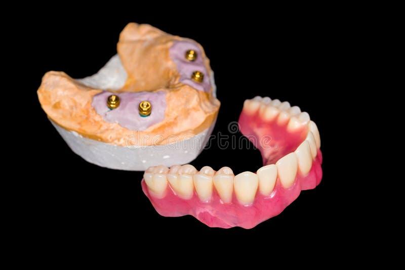 Protesi dentaria smontabile immagini stock